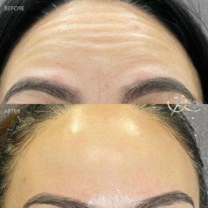 Botox - 7Q Spa & Laser Aesthetics - Glendale, CA
